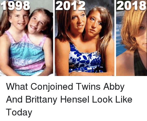 For abigail and brittany hensel twins where