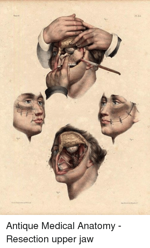 2164 뉘 Antique Medical Anatomy - Resection Upper Jaw | Dank Meme on ...