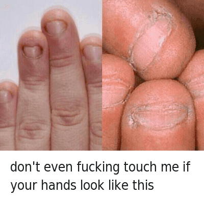 """don't even fucking touch me if your hands look like this : Don't even fucking touch me if your hands look like this  @tomfromthebar  HOW HAVE PEOPLE LIKE THIS EVEN MANAGED TO BREED INTO THE 21ST CENTURY.. WHEN PEOPLE LIKE THIS TOUCH YOUR FOOD YOU JUST SAY """"Just keep it, you dick""""..FUCK.. THATS GROSS, I SWEAR IF I WAS ABOUT TO SMASH A 10/10 BUT PEEPED THOSE FINGERS, I WOULD PUNCH HER STRAIGHT IN THE JAW FOR EVEN COMING AT ME WITH THAT NON-SENSE. CALL HER A CAB(SHE'S PAYING) BUT I'D WARN THE CAB DRIVER ABOUT HER FINGERS JUST IN CASE HE AINT WITH IT.. WOULDN'T WANT TO FUCK UP THE DUDE'S NIGHT TOO.. UNFOLLOW ME IF YOURE FINGERS ARE LIKE THIS DONT LIKE MY SHIT WITH THAT BULLSHIT don't even fucking touch me if your hands look like this"""