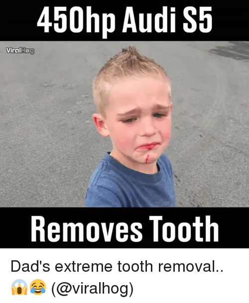 Memes, Audi, and 🤖: 450hp Audi S5  Viral Hoa  Removes Tooth Dad's extreme tooth removal.. 😱😂 (@viralhog)
