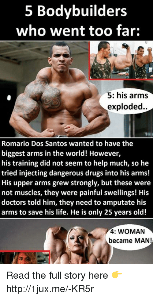 5 Bodybuilders Who Went Too Far 5 His Arms Exploded Romario Dos