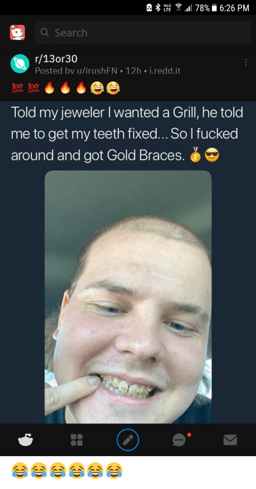 Braces, Search, and Got: 78%6:26 PM  Vo»)  LTE  Q Search  r/13or30  Posted bv u/irush FN  12h i.redd.it  100 100  Told my jeweler I wanted a Grill, he told  to get my teeth fixed... So I fucked  around and got Gold Braces. 😂😂😂😂😂😂