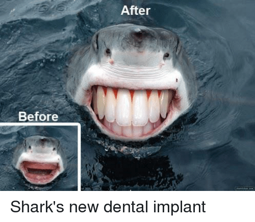 Before After Shark's New Dental Implant | Shark Meme on ME.ME