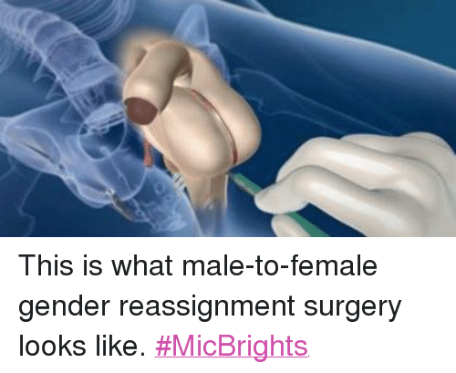 Transsexual reassignment surgery female to male pictures