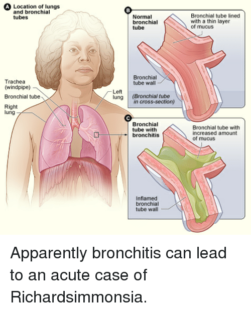 A location of lungs and bronchial tubes normal bronchial tube apparently funny and cross a location of lungs and bronchial tubes normal bronchial ccuart Image collections