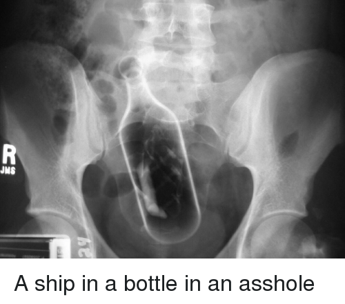 Asshole in a bottle are not