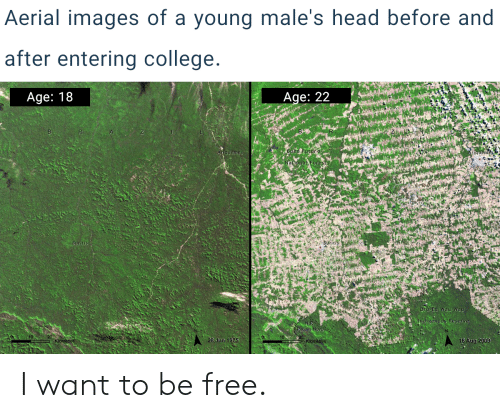 Aerial Images of a Young Male's Head Before and After