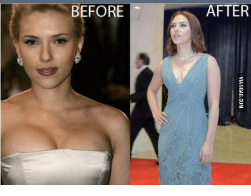 Scarlett johansson boobs real or fake