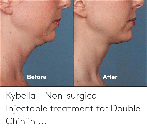 After Before Kybella - Non-Surgical - Injectable Treatment for