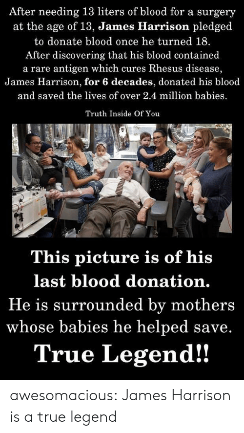 True, Tumblr, and Blog: After needing 13 liters of blood for a surgery  at the age of 13, James Hlarrison pledged  to donate blood once he turned 18.  After discovering that his blood contained  a rare antigen which cures Rhesus disease,  James Harrison, for 6 decades, donated his blood  and saved the lives of over 2.4 million babies  Truth Inside Of You  This picture is of his  last blood donation.  He is surrounded by mothers  whose babies he helped save.  True Legend!! awesomacious:  James Harrison is a true legend