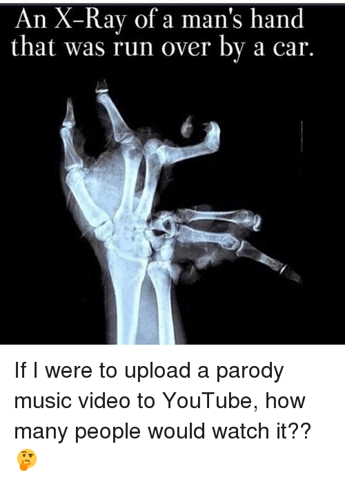 Memes, Music, and Run: An X-Ray of a man's hand  that was run over by a car. If I were to upload a parody music video to YouTube, how many people would watch it?? 🤔