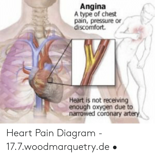 pressure, heart, and oxygen: angina a type of chest pain, pressure or