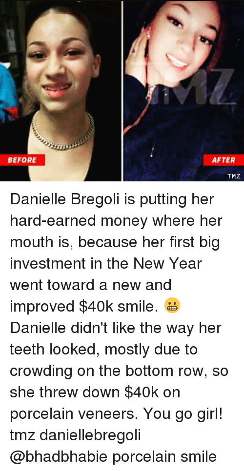 Memes, Money, and New Year's: BEFORE  AFTER  TMZ Danielle Bregoli is putting her hard-earned money where her mouth is, because her first big investment in the New Year went toward a new and improved $40k smile. 😬 Danielle didn't like the way her teeth looked, mostly due to crowding on the bottom row, so she threw down $40k on porcelain veneers. You go girl! tmz daniellebregoli @bhadbhabie porcelain smile