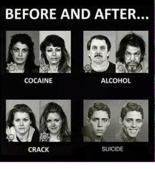 Alcohol, Cocaine, and Cracked: BEFORE AND AFTER.  ALCOHOL  COCAINE  CRACK  SUICIDE