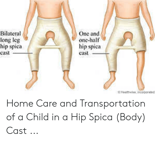 Bilateral Long Leg Hip Spica Cast One and One-Half Hip Spica