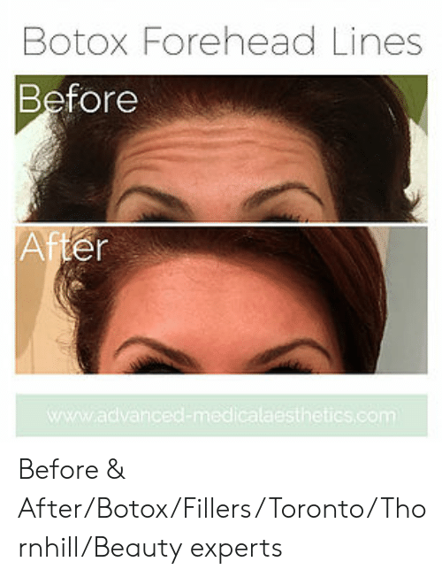 Botox Forehead Lines Before After Sthetics Com Before