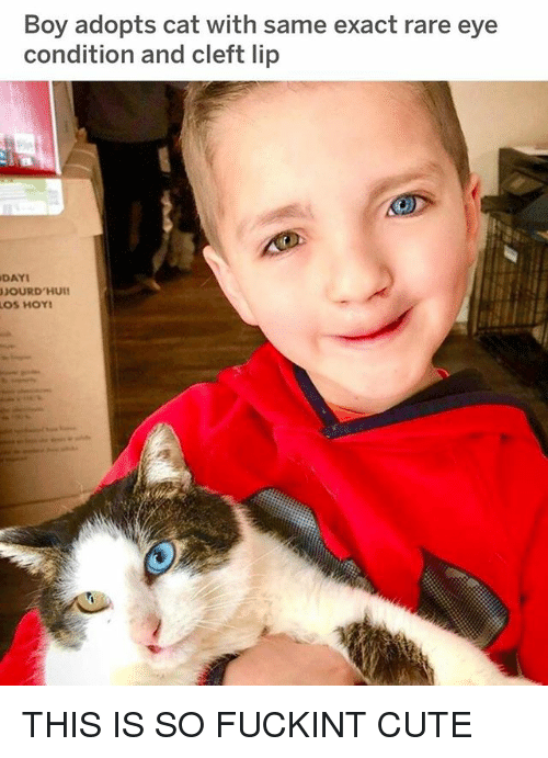 Cute, Boy, and Cat: Boy adopts cat with same exact rare eye  condition and cleft lip  DAYI  JOURD'HUI THIS IS SO FUCKINT CUTE