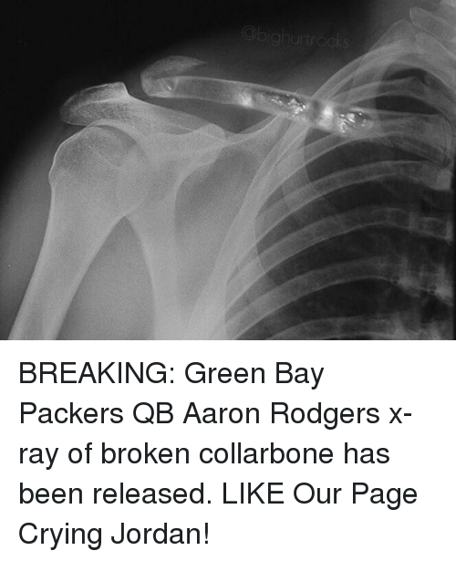 Aaron Rodgers, Crying, and Green Bay Packers: BREAKING: Green Bay Packers QB Aaron Rodgers x-ray of broken collarbone has been released.   LIKE Our Page Crying Jordan!