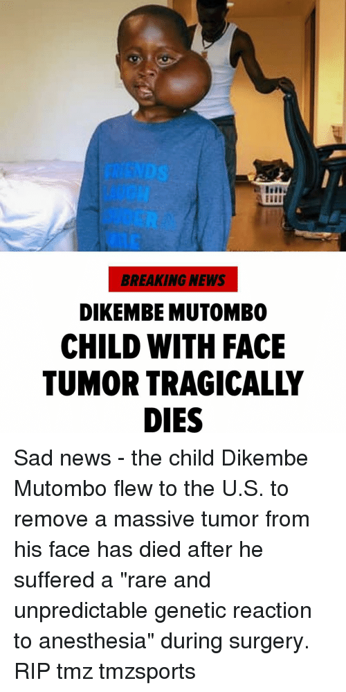 """Memes, News, and Breaking News: BREAKING NEWS  DIKEMBE MUTOMBO  CHILD WITH FACE  TUMOR TRAGICALLY  DIES Sad news - the child Dikembe Mutombo flew to the U.S. to remove a massive tumor from his face has died after he suffered a """"rare and unpredictable genetic reaction to anesthesia"""" during surgery. RIP tmz tmzsports"""