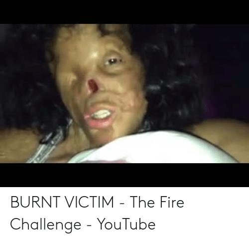 Image result for fire challenge on youtube