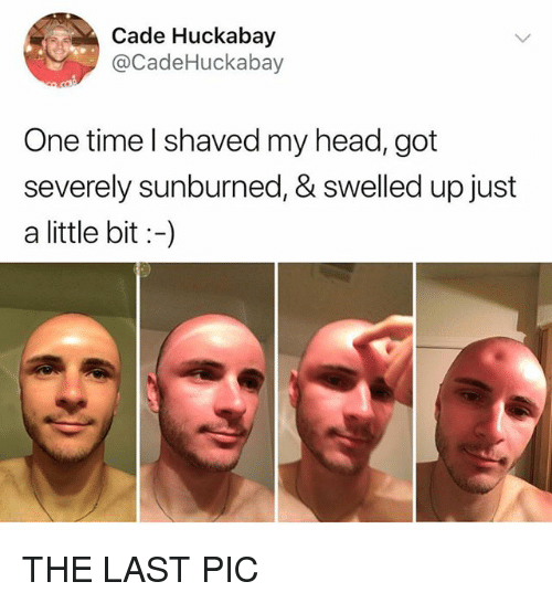 Head, Time, and Got: Cade Huckabay  @CadeHuckabay  One time l shaved my head, got  severely sunburned, & swelled up just  a little bit:-) THE LAST PIC