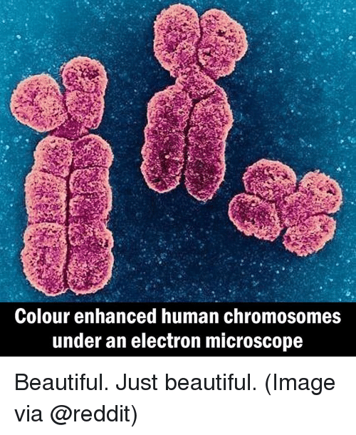 Memes, 🤖, and Human: Colour enhanced human chromosomes  under an electron microscope Beautiful. Just beautiful. (Image via @reddit)