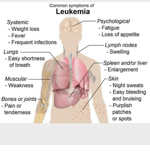 Common Symptoms of Leukemia Psychological Systemic Fatigue Weight