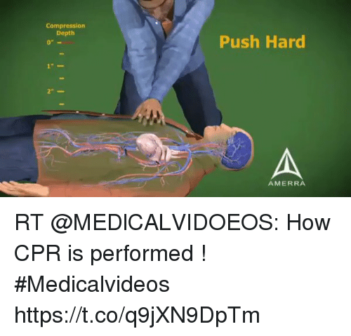 Compression Push Hard AMERRA RT How CPR Is Performed