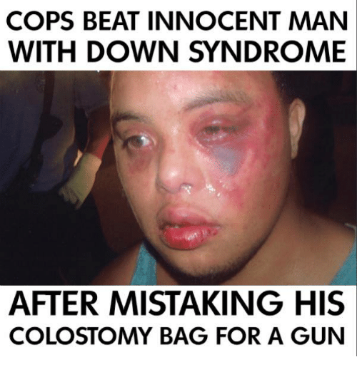 cops beat innocent man with down syndrome after mistaking his 14263822 ✅ 25 best memes about tiger with down syndrome tiger with down,Memes Down Syndrome
