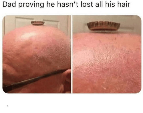 Dad, Lost, and Hair: Dad proving he hasn't lost all his hair .