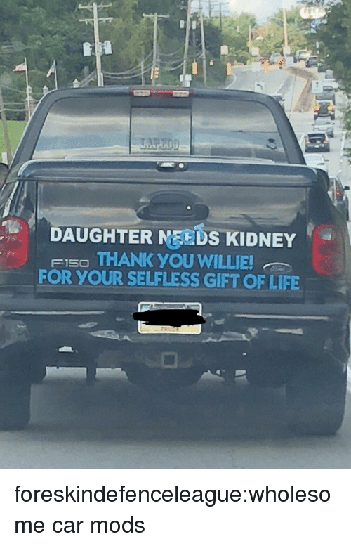 Life, Tumblr, and Thank You: DAUGHTER MEEDS KIDNEY  FI5O THANK YOU WILLIE  FOR YOUR SELFLESS GIFT OF LIFE foreskindefenceleague:wholesome car mods