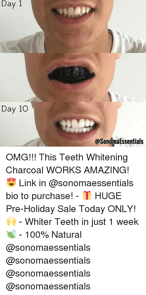 Day 1 Day 10 Omg This Teeth Whitening Charcoal Works Amazing