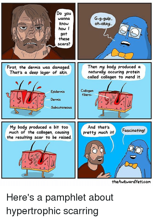 Memes, Protein, and Too Much: Do you  wanna  know  how I  got  these  Scars?  First, the dermis was damaged.  That's a deep layer of skin.  Epidermis  Dermis  Subcutaneous  My body produced a bit too  much of the collagen, causing  the resulting scar to be raised.  G-9-gulp...  oh okay.  Then my body produced a  naturally occurring protein  called collagen to mend it  Callogen  fibers-  And that's  pretty much it!  Fascinating!  theAwkwardyeti.com Here's a pamphlet about hypertrophic scarring