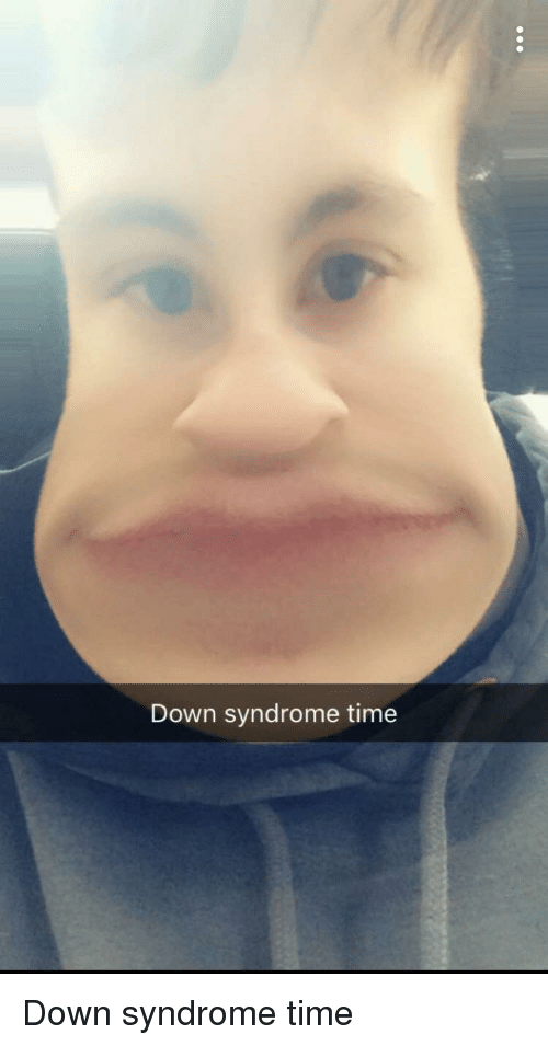 Down Syndrome, Time, and Screenshots: Down syndrome time