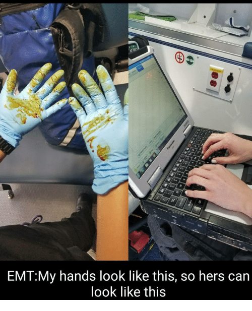 Emt My Hands Look Like This So Hers Can Look Like This Can Meme On