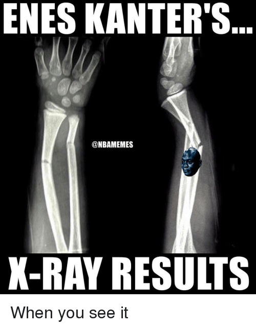 Enes Kanter, Nba, and When You See It: ENES KANTER'S  @NBAMEMES  X-RAY RESULTS When you see it