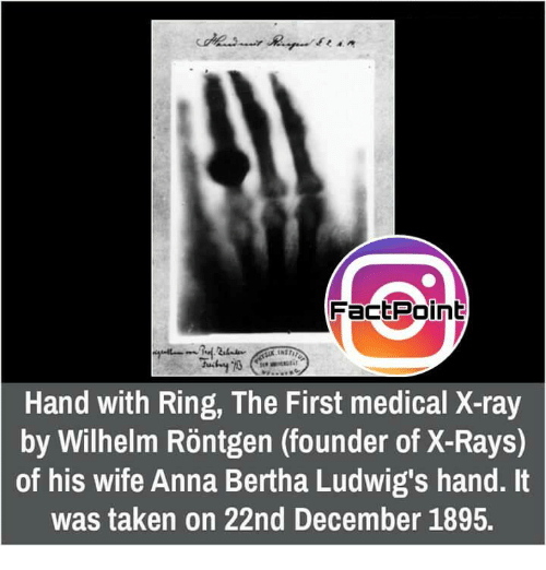 factpoint hand with ring the first medical x ray by wilhelm 13452371 factpoint hand with ring the first medical x ray by wilhelm