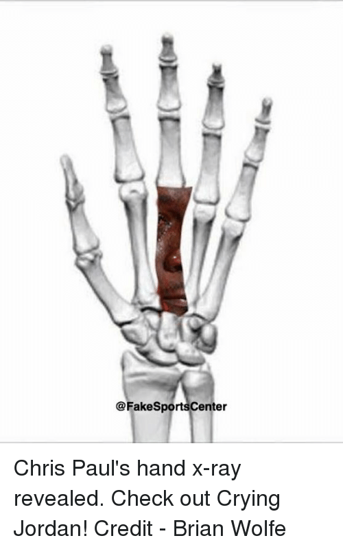 28f3789403 Chris Paul s Hand X-Ray Revealed Check Out Crying Jordan! Credit ...