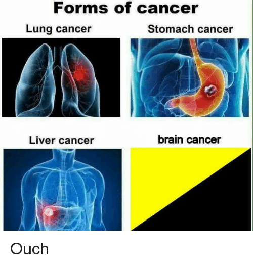 forms of cancer lung cancer stomach cancer brain cancer liver 19940288 forms of cancer lung cancer stomach cancer brain cancer liver