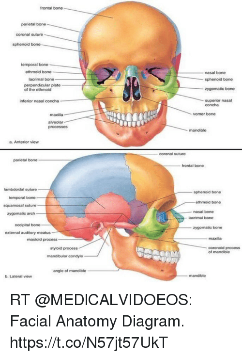 Frontal Bone Parietal Bone Coronal Suture Sphenoid Bone Temporal