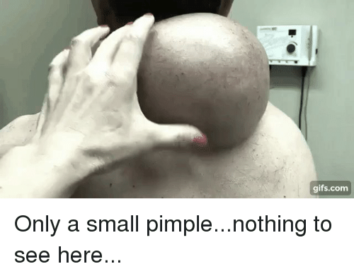 Funny, Gifs, and Com: gifs.com Only a small pimple...nothing to see here...