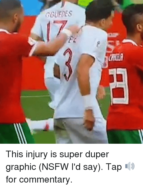 Memes, Nsfw, and 🤖: GOUFDES This injury is super duper graphic (NSFW I'd say). Tap 🔊for commentary.