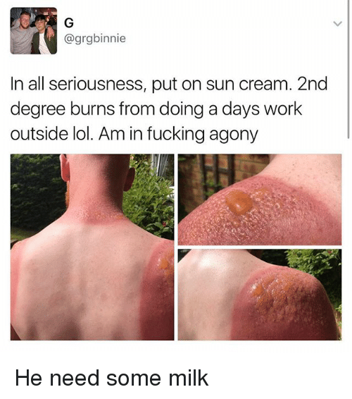 Fucking, Lol, and Memes: @grgbinnie  In all seriousness, put on sun cream. 2nd  degree burns from doing a days work  outside lol. Am in fucking agony He need some milk