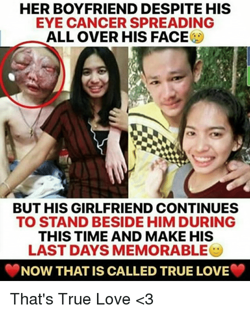 Love, Memes, and True: HER BOYFRIEND DESPITE HIS  EYE CANCER SPREADING  ALL OVER HIS FACE  BUT HIS GIRLFRIEND CONTINUES  TO STAND BESIDE HIM DURING  THIS TIME AND MAKE HIS  LAST DAYS MEMORABLEツ  NOW THAT IS CALLED TRUE LOVE That's True Love <3