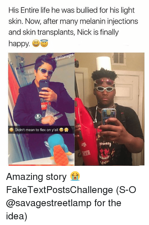 Life, Memes, and Happy: His Entire life he was bullied for his light  skin. Now, after many melanin injections  and skin transplants, Nick is finally  happy Amazing story 😭 FakeTextPostsChallenge (S-O @savagestreetlamp for the idea)