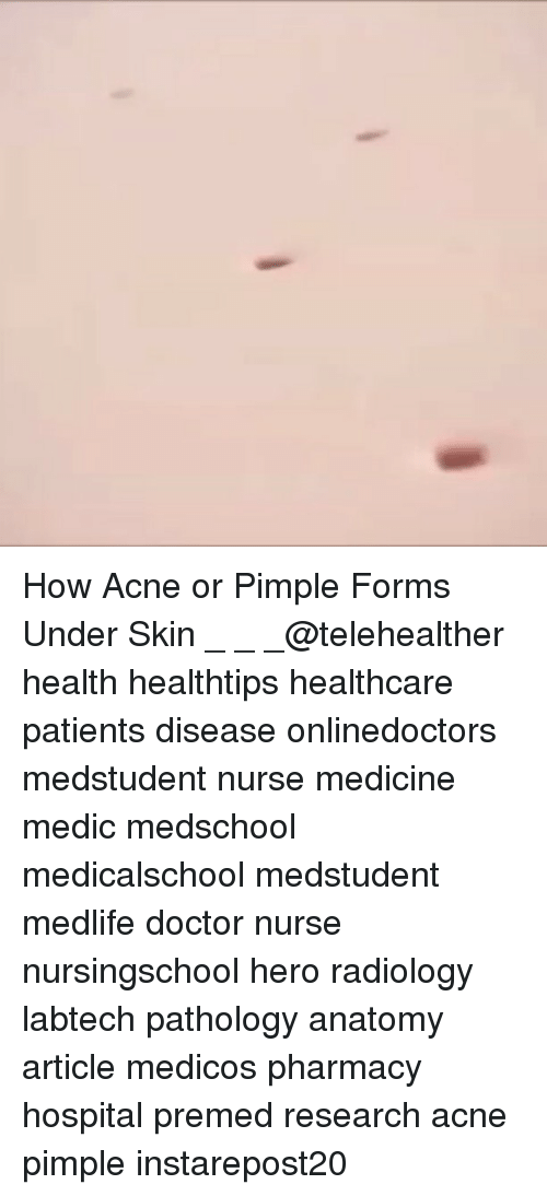 How Acne or Pimple Forms Under Skin _ _ _@Telehealther Health ...