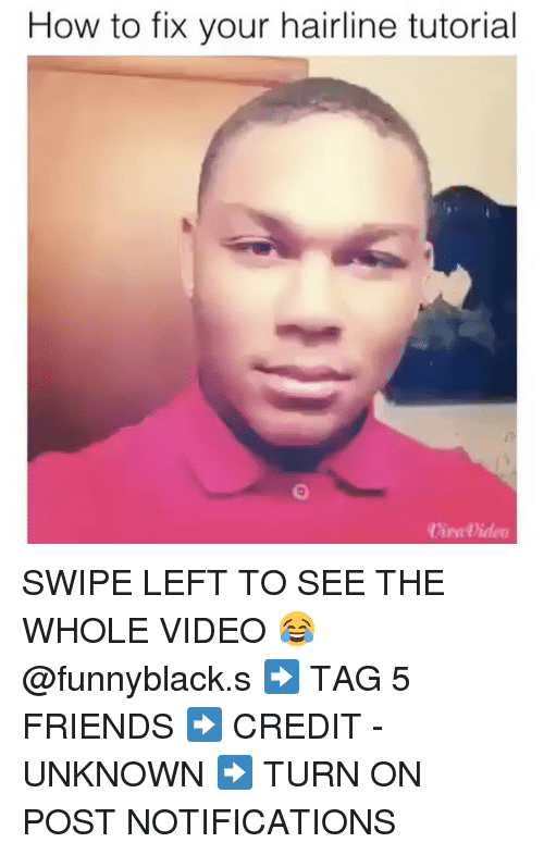 How To Fix Your Hairline Tutorial Swipe Left To See The Whole Video