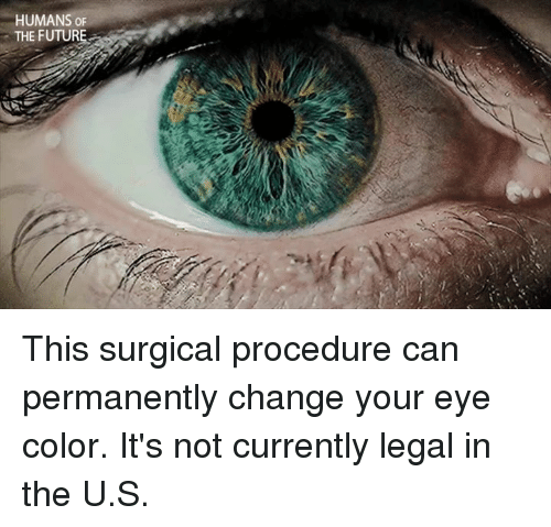 Can You Change Your Eye Color Permanently Naturally