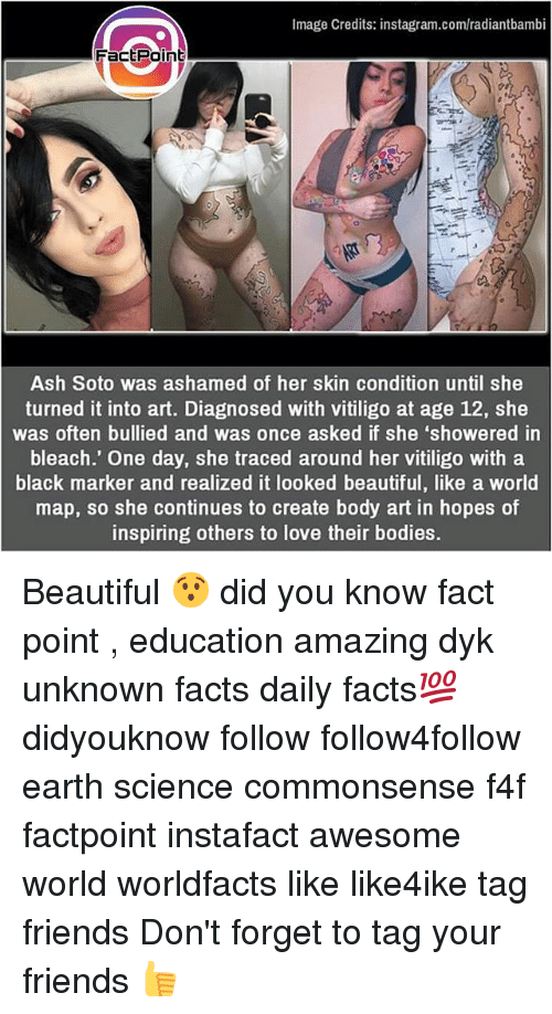 Ash, Beautiful, and Bodies : Image Credits: instagram.com/radiantbambi  Factpoint  Ash Soto was ashamed of her skin condition until she  turned it into art. Diagnosed with vitiligo at age 12, she  was often bullied and was once asked if she 'showered in  bleach.' One day, she traced around her vitiligo with a  black marker and realized it looked beautiful, like a world  map, so she continues to create body art in hopes of  inspiring others to love their bodies. Beautiful 😯 did you know fact point , education amazing dyk unknown facts daily facts💯 didyouknow follow follow4follow earth science commonsense f4f factpoint instafact awesome world worldfacts like like4ike tag friends Don't forget to tag your friends 👍