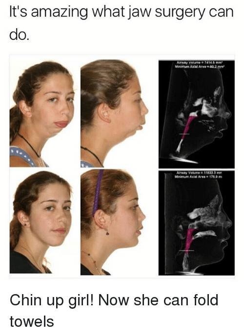 "Memes, Girl, and Amazing: It's amazing what jaw surgery can  do.  Arway Volume 7414 5 mm  Minimum Axial Are"" m㎡  Arway Volume 11833 3  Mnmum Axial Area-1769 mu Chin up girl! Now she can fold towels"